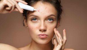 cara menghilangkan bekas luka di wajah secara alami